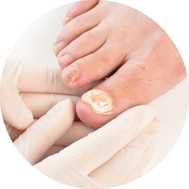 mycose-pieds