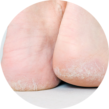parrafine-pieds-gerce