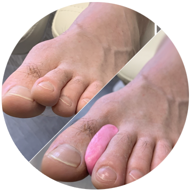 orthoplastie-piedtech